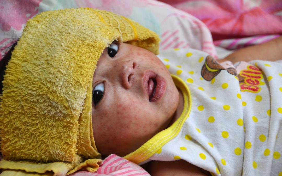UNICEF przestrzega przed zachorowaniami na odrę